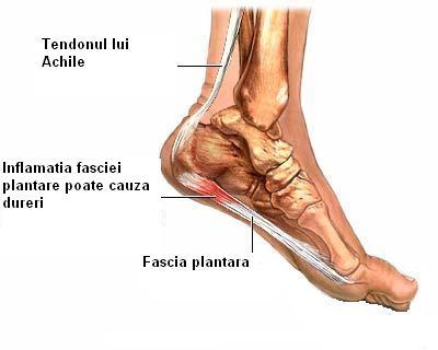 De ce rănesc articulațiile picioarelor după alergare - infostraja.ro