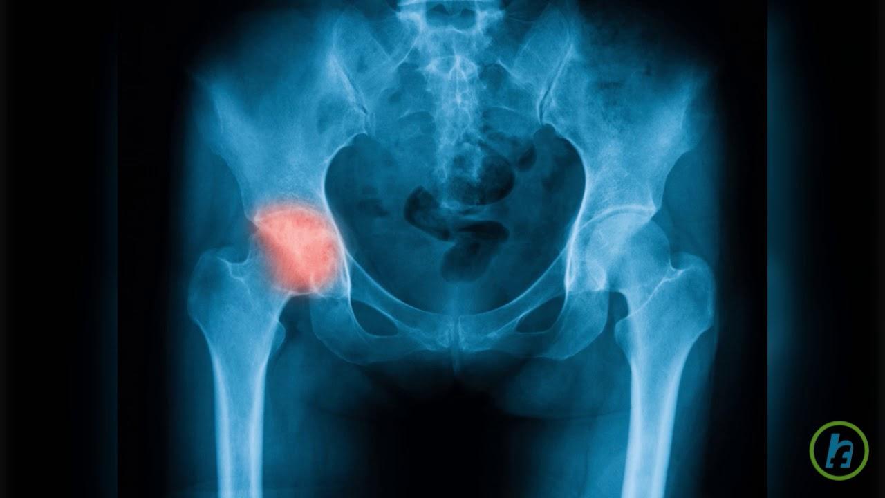 preparate intramusculare pentru inflamații articulare cum doare articulațiile genunchiului
