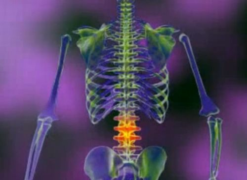 artroza tratamentului coloanei vertebrale sacrale