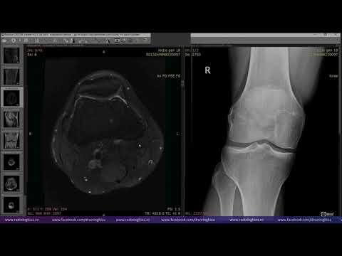 istoric medical falsă articulație a femurului tehnica de injectare a medicamentului în articulația genunchiului