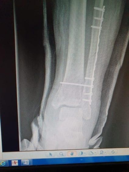 perioada de recuperare după fractura de gleznă