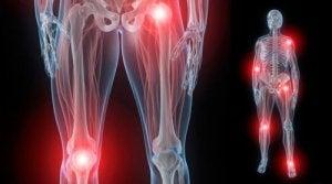 durere articulară tratamentul hemartrozei articulare