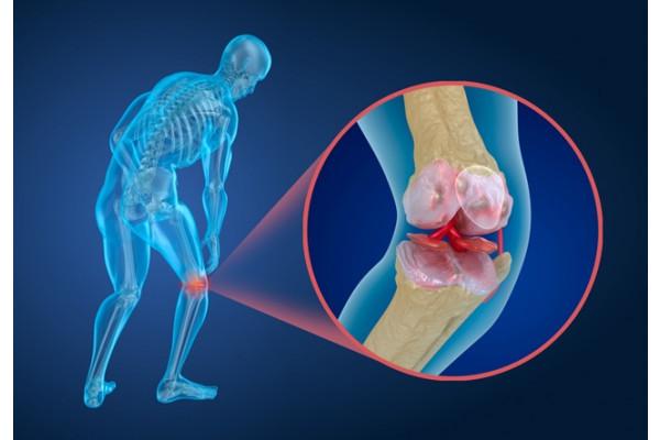 cât timp să tratezi artroza genunchiului tratament de artroză la medicul de familie