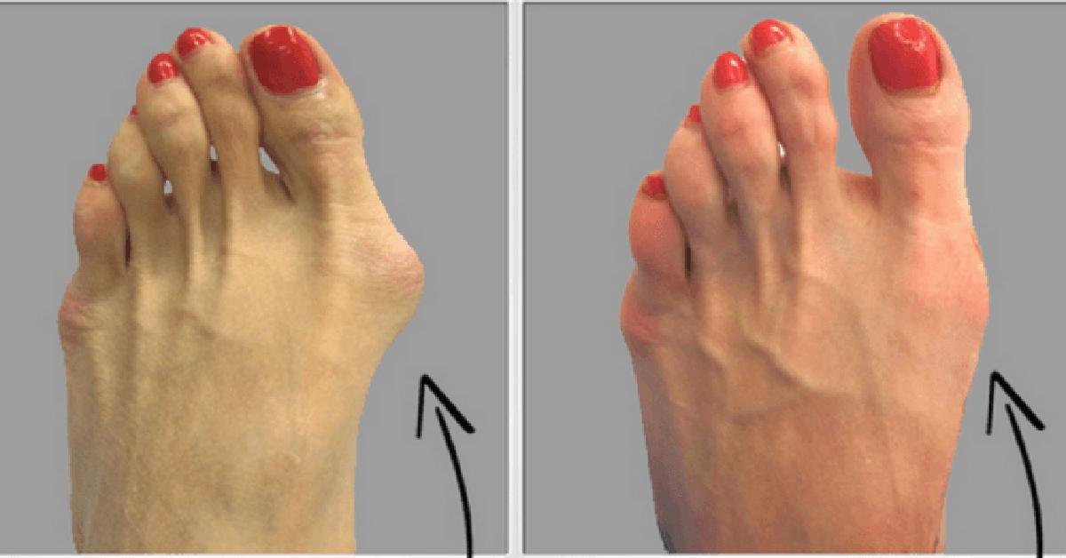 metode de tratament pentru artroza șoldului osteoartroza tratamentului articular acromioclavicular