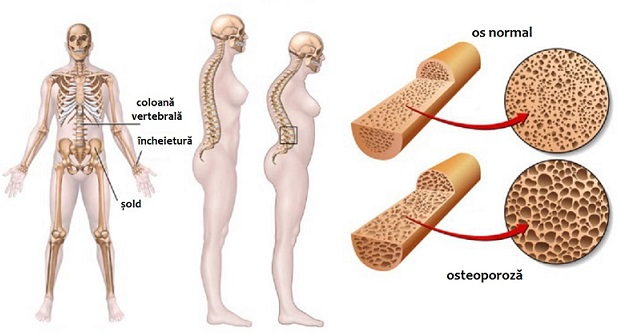 Osteoporoza - Ce este? Cauzele aparitiei, Simptome si Tratament   CENTROKINETIC