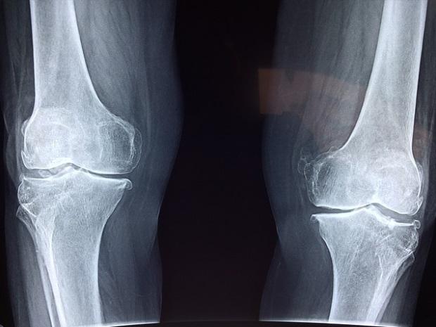 picioarele articulațiile genunchiului roșu cum să îndoiți un genunchi într-o articulație