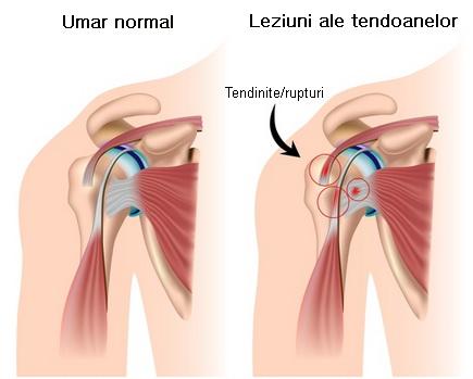 dureri articulare după sport