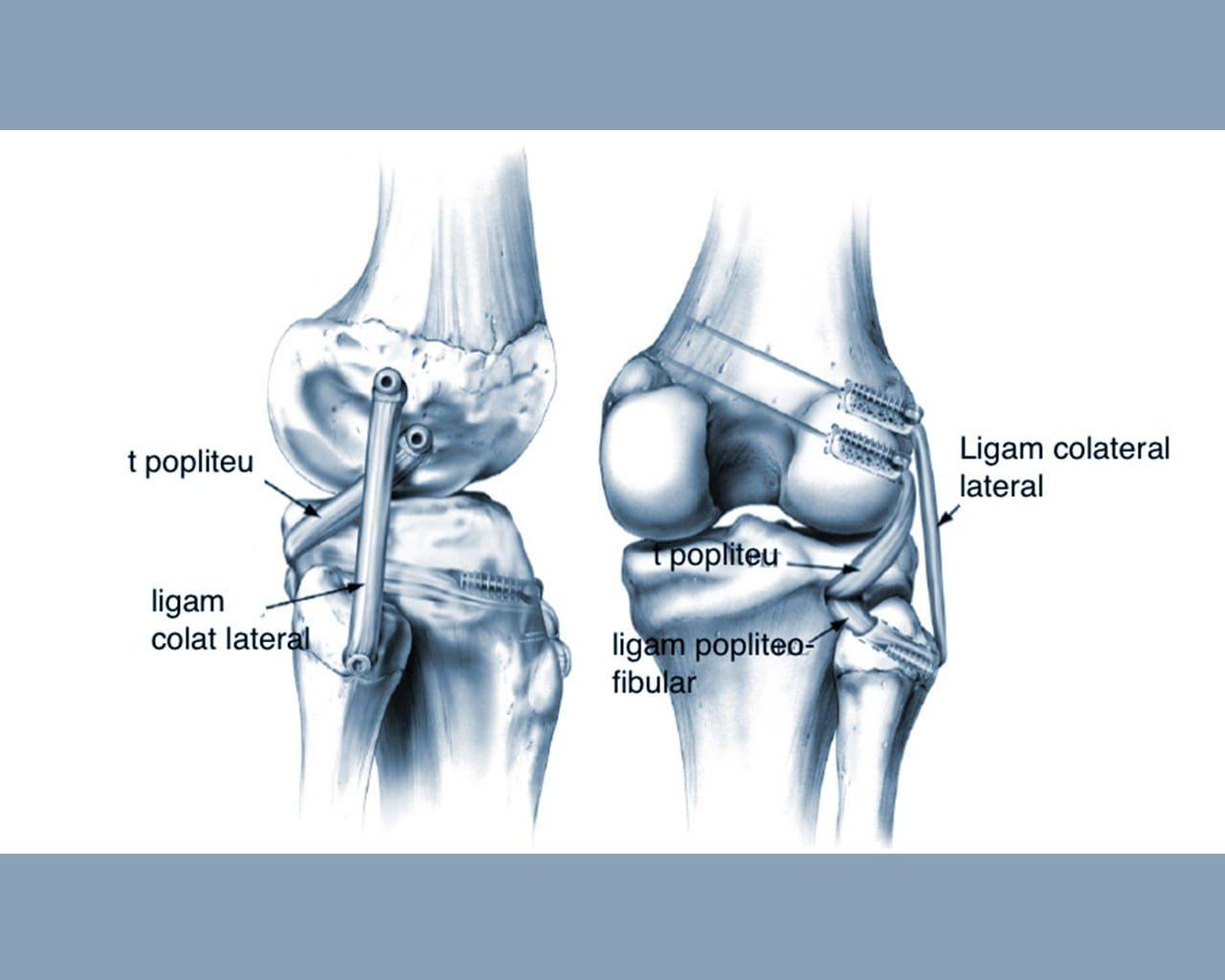 tratamentul entezopatiei ligamentului lateral intern al genunchiului