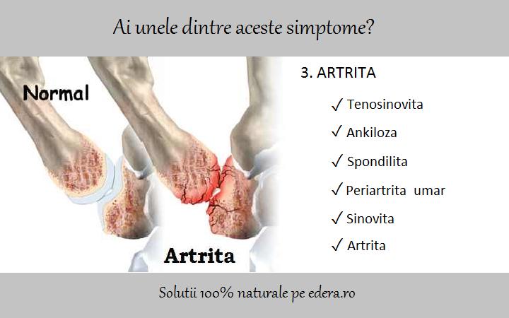 artrita reumatoida a articulatiei umarului cum să tratezi o fractură de gleznă