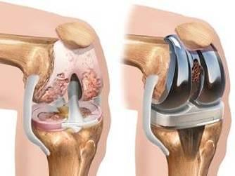 pregătirea pentru refacerea articulației genunchiului