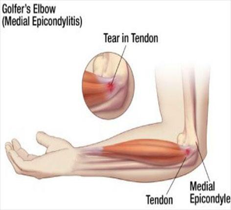 artroza genunchiului 0