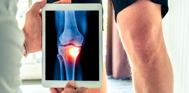 osteoartrita tuturor articulațiilor