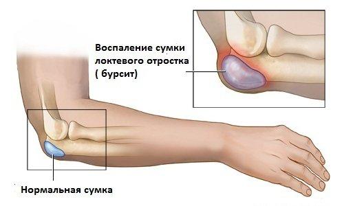 tratamentul cald al articulațiilor piciorului