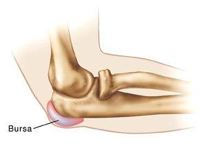 Boli ale cotului: bursita purulenta si epicondilita - Diagnosticare