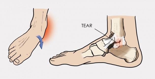 Ajută la deteriorarea ligamentelor gleznei. Esența și tipurile de rupturi ale ligamentelor gleznei
