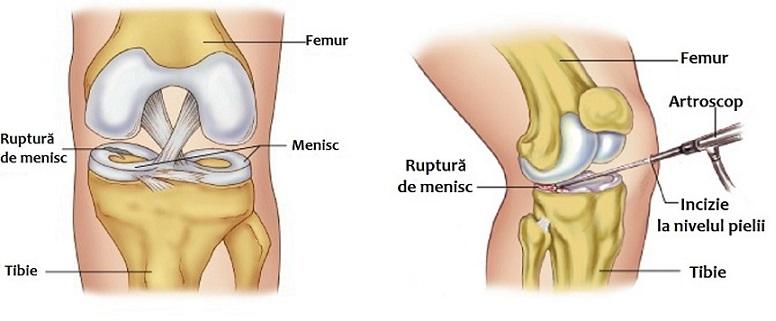 Meniscus leziune simptome genunchi