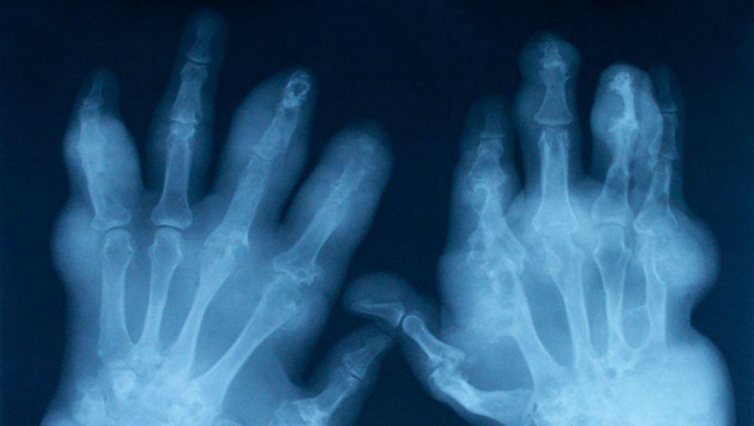 artrita și artroza tratament și contrast