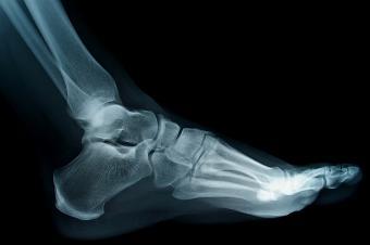 boli ale oaselor și articulațiilor piciorului