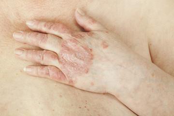 tratamentul lichidului de șold