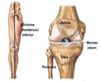 genunchiul a zburat din articulație tratamentul artrozei cu brânză de căsuță