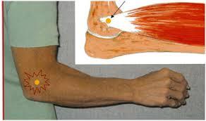 simptomele de tratament cu epicondilita cotului