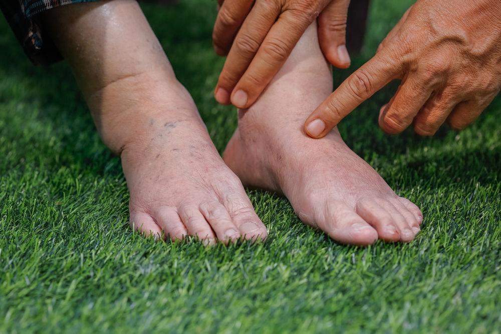 picior umflat tratament tratamentul cu artroză a medicamentelor.