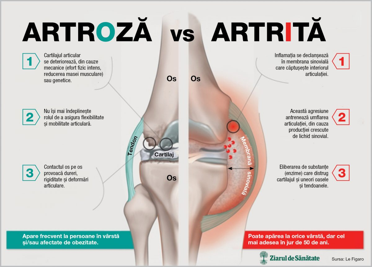 Artroza articulației genunchiului în tratamentul adolescenților