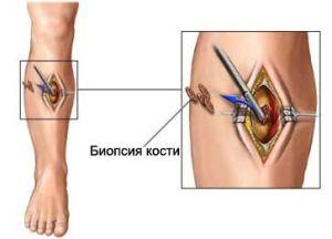 dureri de umăr drept și crăpături tratamentul durerilor articulare pelvine