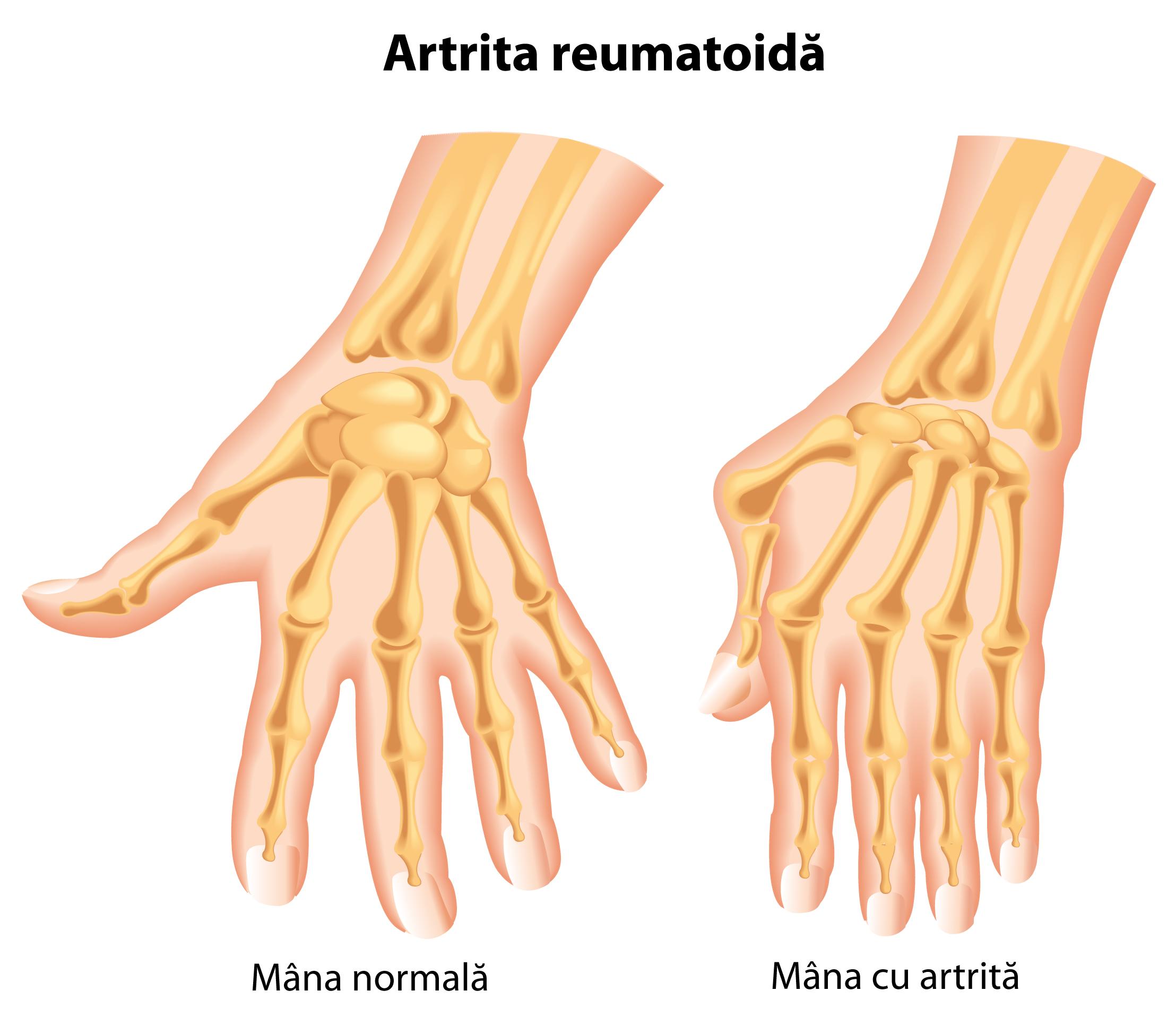 medicament pentru boala articulațiilor degetelor