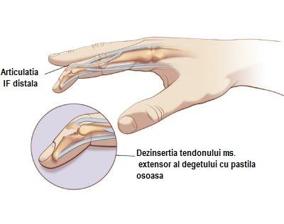 de ce durează articulația degetului arătător pe mână