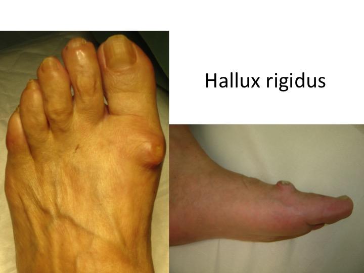 cum se tratează artroza artroza piciorului