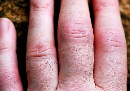 dureri de călcâie a articulațiilor numele articulației genunchiului