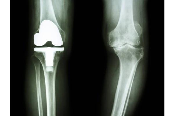ultimele modalități de a trata artroza genunchiului