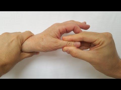 Tratamentul artrozei deformante a articulației umărului drept, 4 комментариев