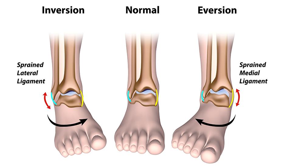 boala articulației piciorului feminin Prescriptie pentru artralgie