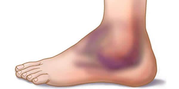 deteriorarea ligamentelor tratamentului unguentului de gleznă