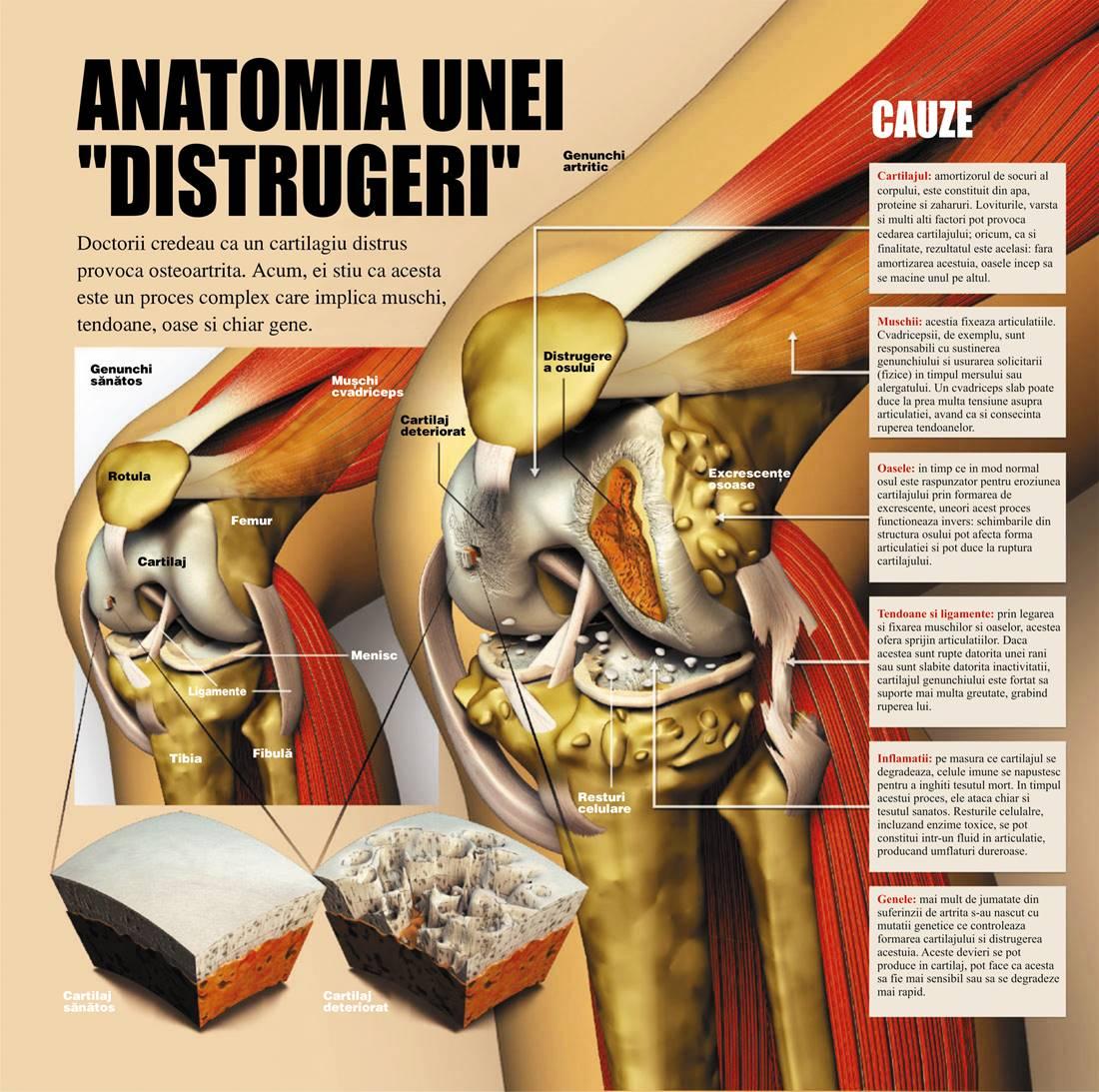 complex pentru tratamentul artrozei preparate pentru compoziția articulațiilor