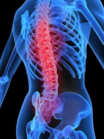 boli distrofice ale articulațiilor și ale coloanei vertebrale glucozamină 750 condroitină 600 cumpără