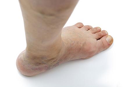 picior umflat tratament preparate osoase articulare