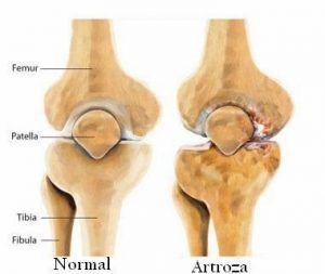 și. mamele tratează artroza 911 balsam cu gel pentru articulații cu condroitină