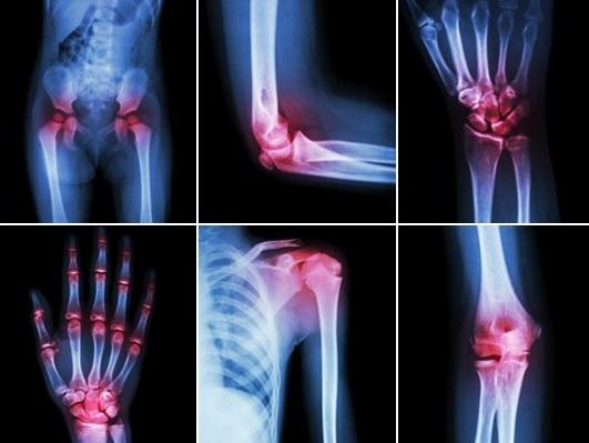 tratamentul artrozei în iordan