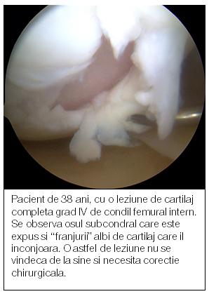 Medicina regenerativa a cartilajului   infostraja.ro