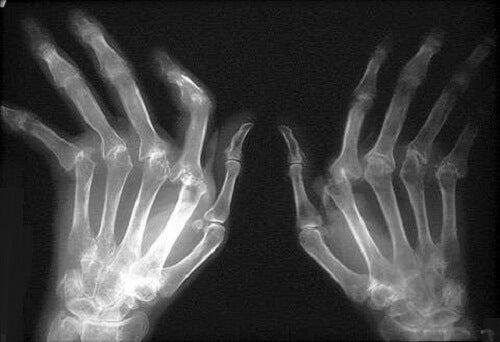 agenți condroprotectori pentru artroza genunchiului