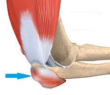 dureri de cot după bursită artrita simptomelor și tratamentului articulației șoldului