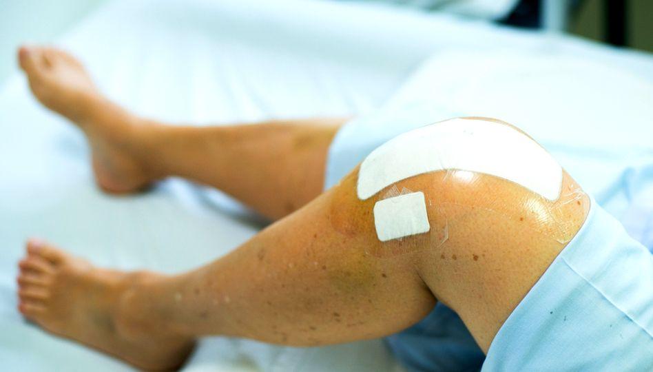 Artroplastie Genunchi   Artroplastia   Protezare sold - Protezare genunchi