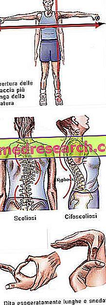 dacă se umflă articulațiile dureri articulare ketoprofen