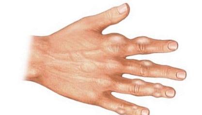 Este tratabilă cu artroza. Artroza – ce este, tratament si simptome | CENTROKINETIC