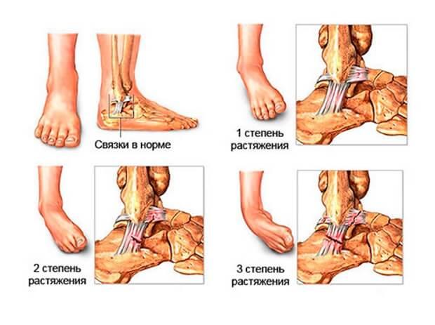 Ligament. Tratamentul cu Ligamentitis - Gută , Ruperea sindrozei tratamentul gleznei