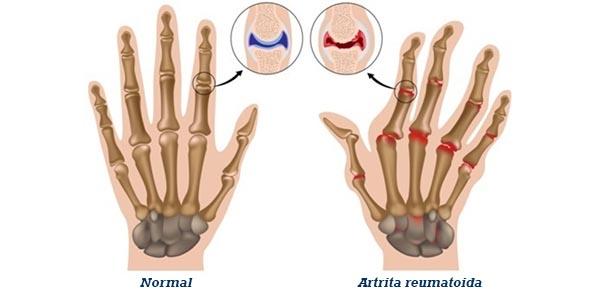 artrita reumatoida ce articulatii tratamentul artrozei articulației genunchiului în stadiul inițial