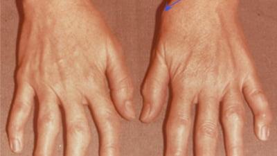 artroza simptomelor și tratamentului degetelor de la picioare